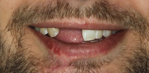 Patient who lost several teeth on the upper and lower due to a work accident