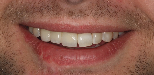 After dental implants, the prosthesis replaces his teeth and restores his function.