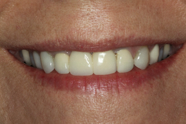 Patient had a failing dental bridge spanning across three teeth that was used to replace a missing front tooth.
