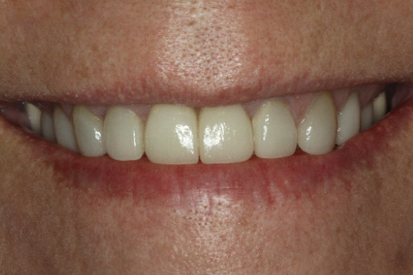Dental implants used to replace the two front teeth.