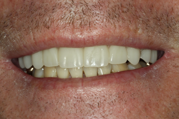 Patient who saw great improvement in the function of his bite with the All-on-4® Treatment Concept.