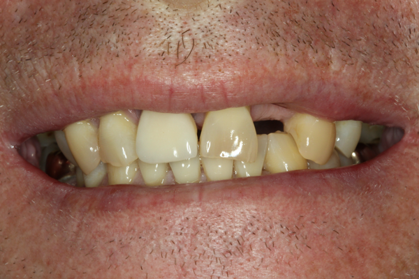 Patient who was facing the loss of his teeth.