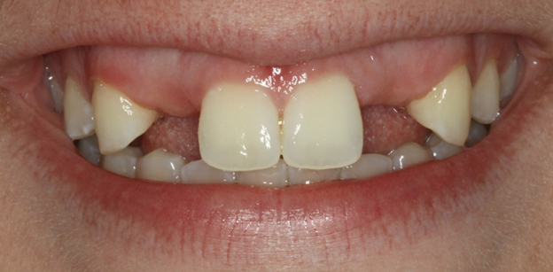 This patient below had missing teeth from birth, excessive gums resulting in a gummy smile and teeth appear square in shape