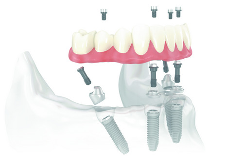 All on 4 Madison Oral Surgery & Dental Implants WI 53713